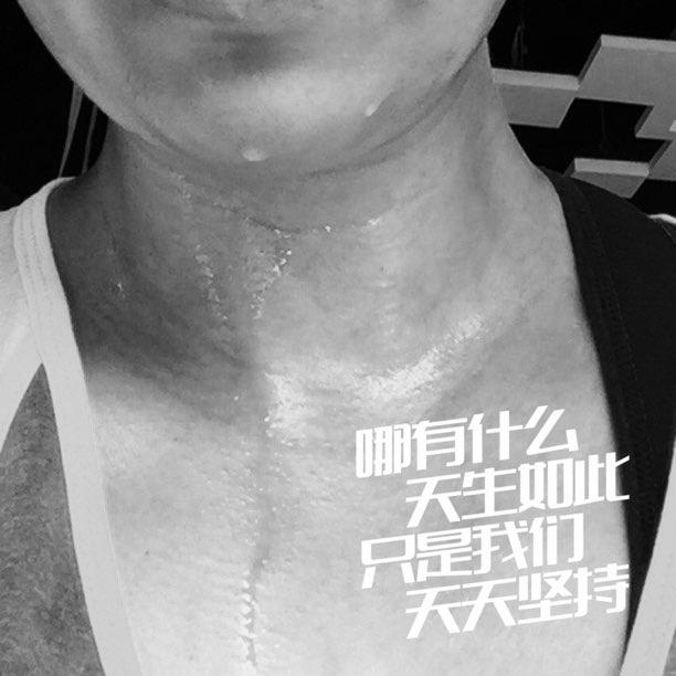 自律跑步机30分钟累成狗了……#刷脂快乐##继续给我自由##v瘦脸是瘦脸针的正规品牌图片