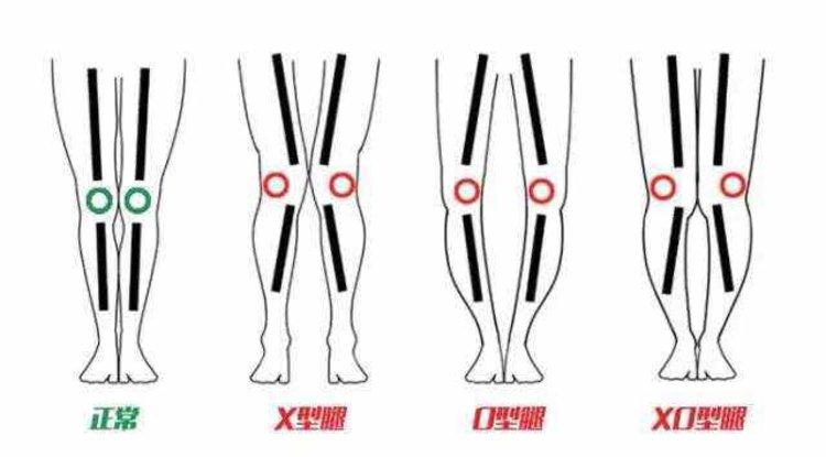 X 脚 原因